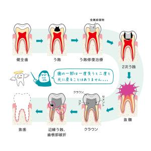 08_歯の運命図_04